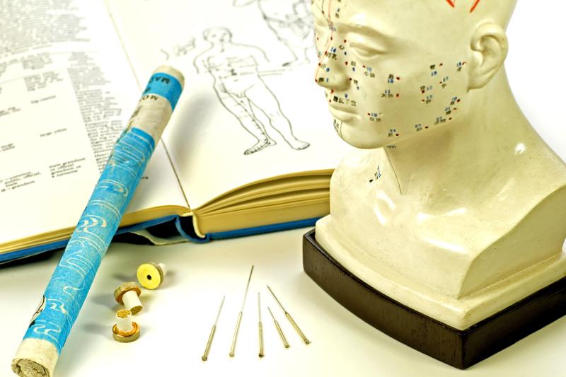 Akupunktur Kopf