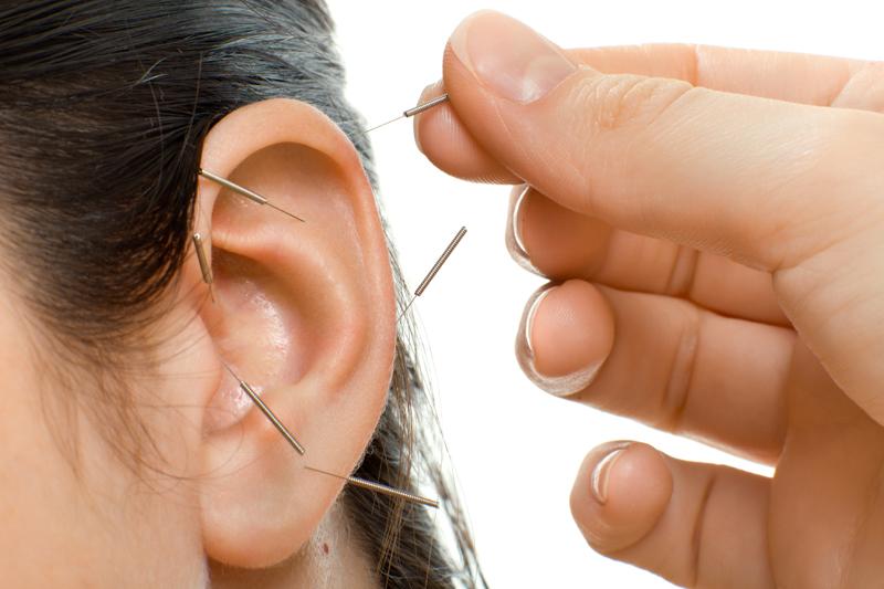 Ohrakupunktur Nadeln